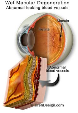 Wet macular degeneration illustration