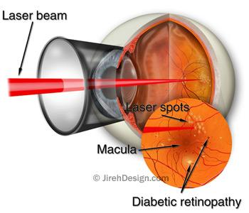 Laser for diabetic retinopathy