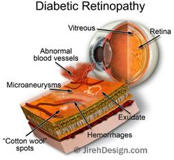 Diabetic retinopathy illustration hypoglycemia article