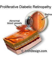 Diabetic retinopathy vision damage