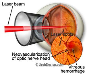 Pan retinal photocoagulation