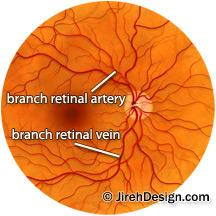 Retinal vasculature drawing