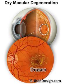 Drusen Small Deposits In The Retina From Macular Degeneration