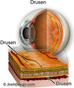 Drusen illustration