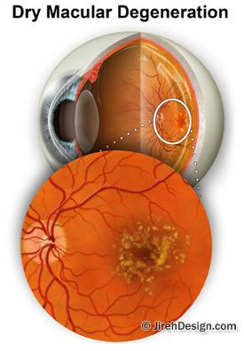 Lutein slows macular degeneration shown in this photo