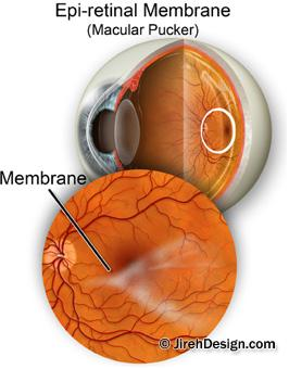 Macular pucker epiretinal membrane can be treated with retinal pucker surgery