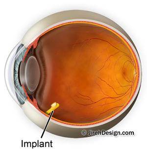 Retisert implant for macular swelling