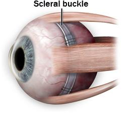 Scleral buckle for retinal detachment