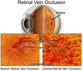 Ozurdex for retinal vein occlusion