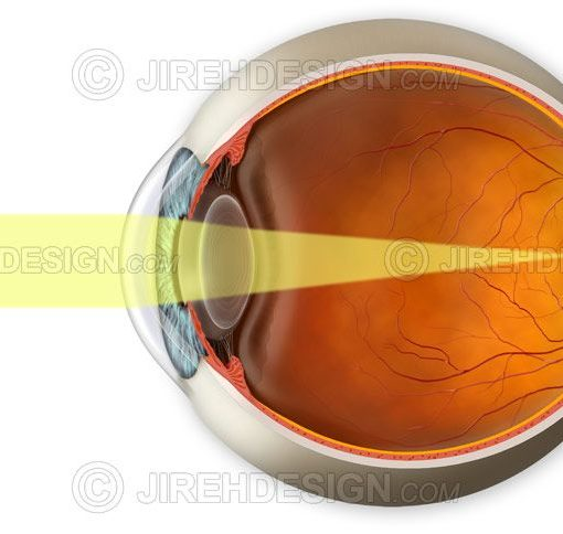 Normal vision demonstration with light rays landing on the retina #an0021