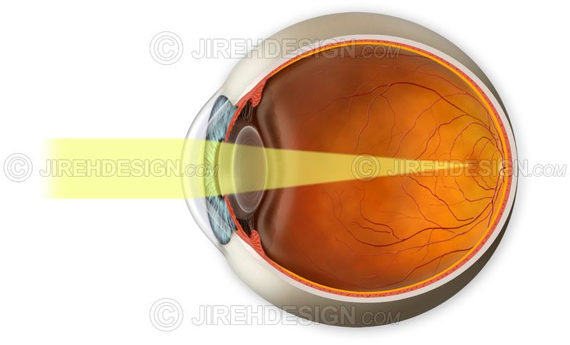 Normal vision demonstration with light rays landing on the retina