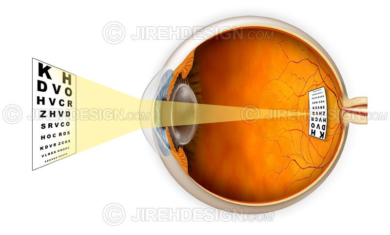 How the eye and vision works with an emmetropic eye, light rays and eye chart demonstrating normal vision