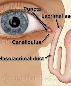 Lacrimal system diagram including lacrimal sac, nasolacrimal duct, punctum and canaliculus