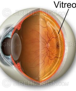Vitreous humor with eyeball cross-section wedge