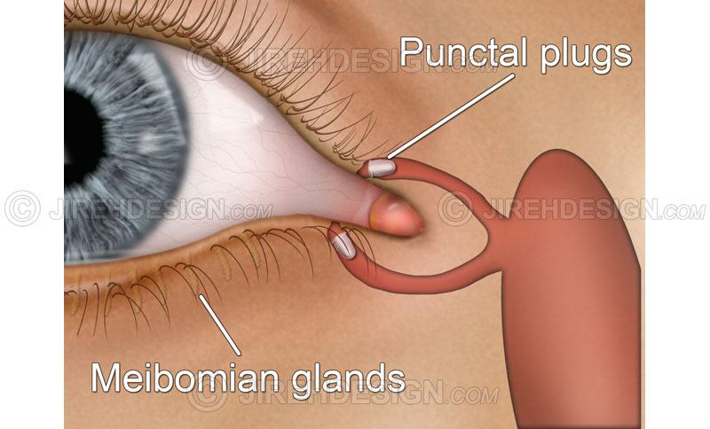 Punctal plugs implants for dry eye syndrome