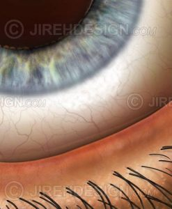 Eyelid margin closeup with lid margin, lashes, conjunctiva, and iris