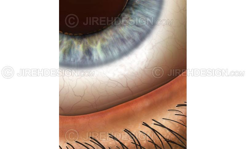 Eyelid margin closeup with lid margin, lashes, conjunctiva, and iris #an0056
