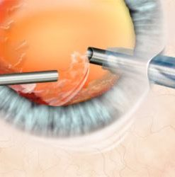 Cataract & IOL surgery