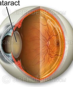 Cataract cross-section illustration