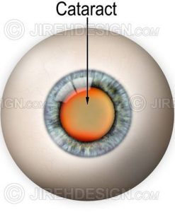 Cataract illustration with eyeball