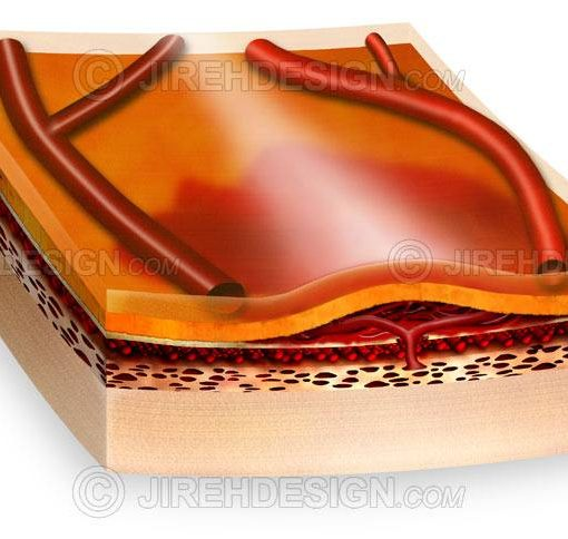 Choroidal neovascular membrane #co0009