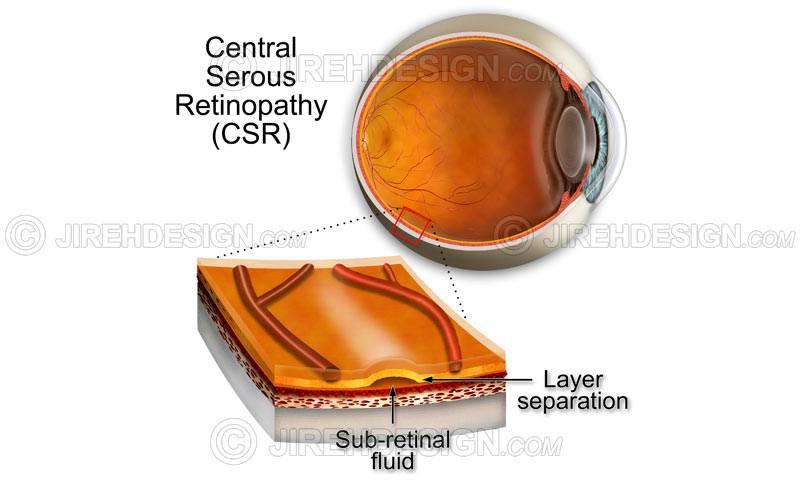 Central serous chorioretinopathy – CSR #co0010