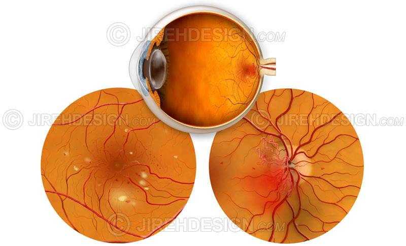 Diabetic retinopathy with NVD