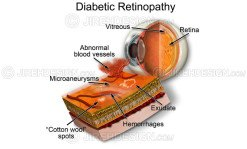 Diabetic retinopathy graphic depicting neovascularization