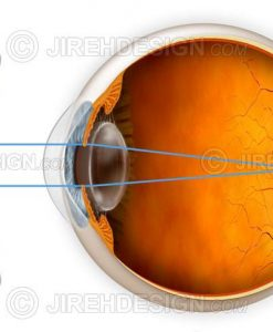 Myopia correction with a lens