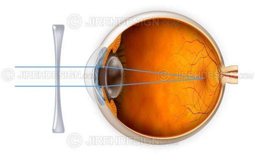 Myopia correction with a lens #co0013