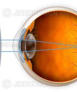 Hyperopia correction with a lens