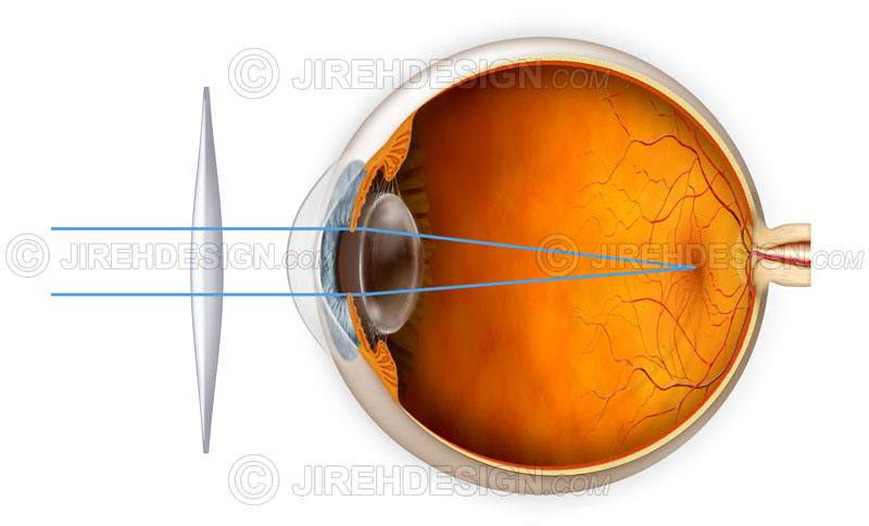Hyperopia correction with a lens