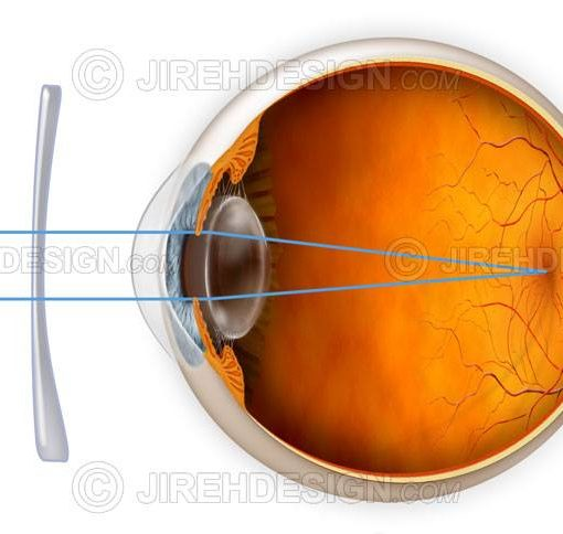 Astigmatism correction with a lens #co0015