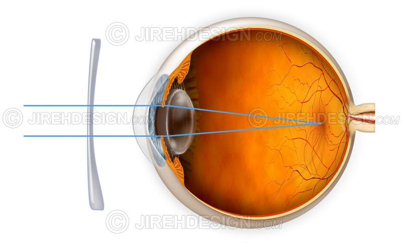 Astigmatism correction with a lens