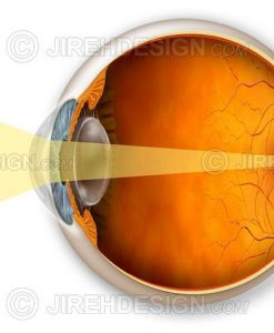 Hyperopic eye and a graphic describing how it affects vision