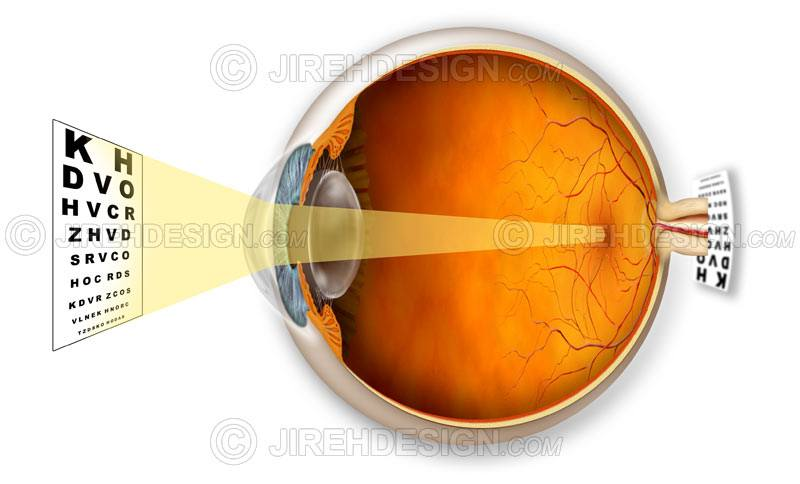 Hyperopic eye and a graphic describing how it affects vision #co0017