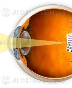 Myopic eye and a graphic describing how it affects vision