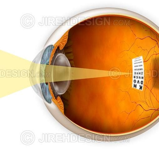 Myopic eye and a graphic describing how it affects vision #co0025