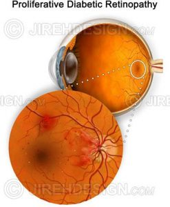 Proliferative diabetic retinopathy – PDR