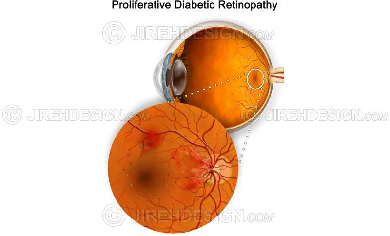 Proliferative diabetic retinopathy – PDR #co0028