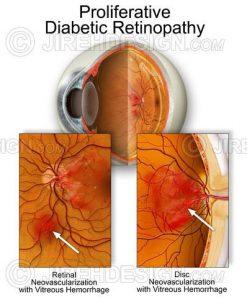 PDR – diabetic retinopathy