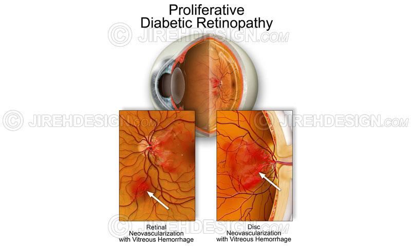 PDR – diabetic retinopathy #co0029
