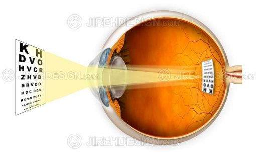 Astigmatism vision #co0034