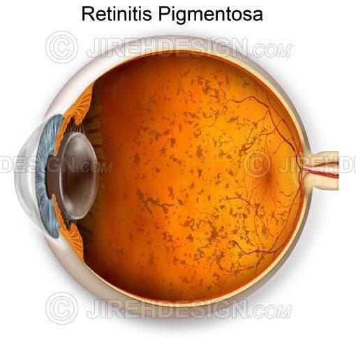 Retinitis pigmentosa #co0035
