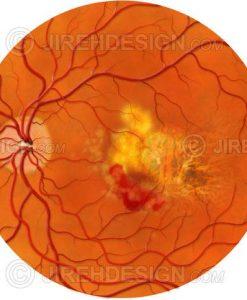 Subretinal hemorrhage in AMD