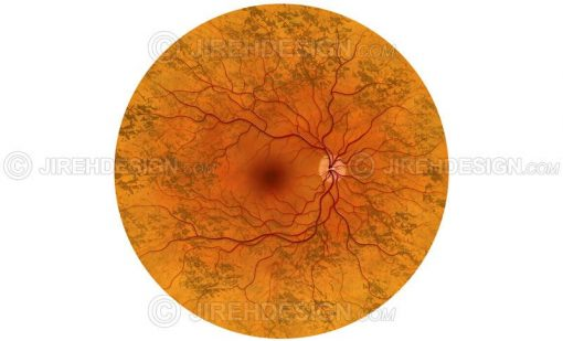 Retinitis pigmentosa illustration #co0040