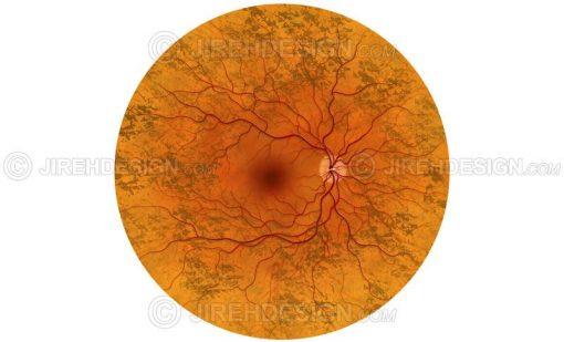 Retinitis pigmentosa illustration #co0040