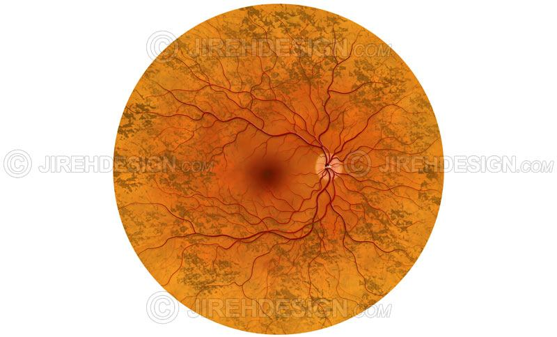 Retinitis pigmentosa illustration