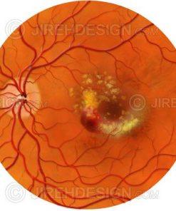 Exudative macular degeneration