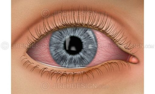 Conjunctivitis eye infection #co0046